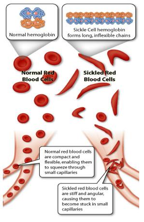 Illustration shows how sickle cell hemoglobin forms long, unflexible chains.