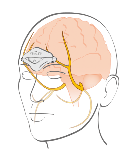 Illustration shows Cefaly device resting between the eyes along the brow line.