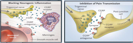 Illustration depicts blocking of neurogenic inflammation