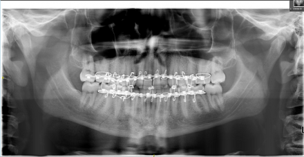 Panoramic radiograph with the maxillomandibular fixation in place and the fractures marked with arrows
