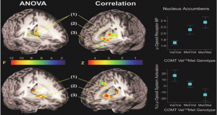COMT Val Met Genotype brain scan