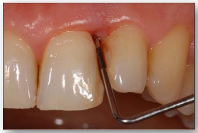 Periodontal inflammation