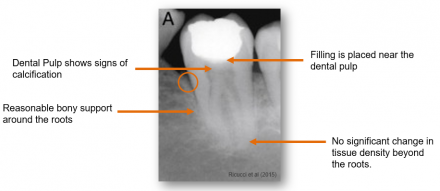 Periodontal radiograph shows signs of calcification, reasonable bony support around the roots, filling placed near the dental pulp, and no significant change in tissue density beyond the roots