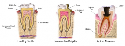 Illustrations of the progress from a healthy tooth through irreversible pulpitis to apical abscessto