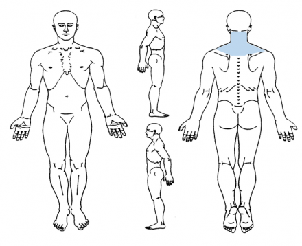 Illustration of the body for the purpose of shading in the area with pain. Luisa's diagram shows pain at the back of the neck.