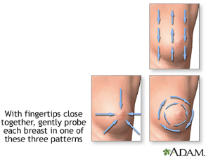 Illustration showing directions to palpate breasts with fingertips during self exam.