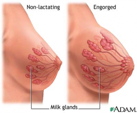 Illustration showing the milk glands of a normal breast compared to an engorged breast.